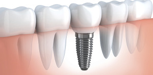 An Example Of A Dental Implant