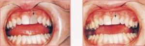 Teeth Whitening Bleach